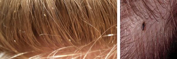 Poux et lentes dans les cheveux